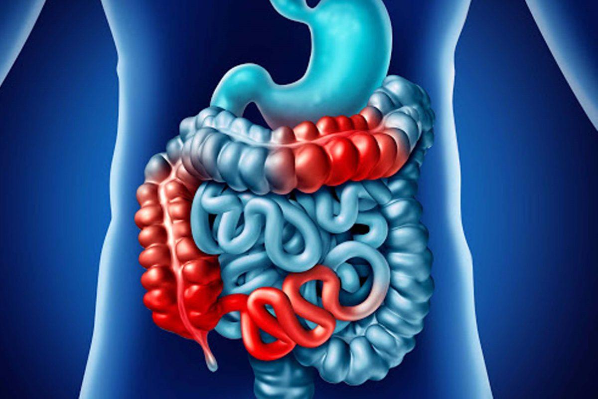 GHHC-inflamatoria_intestinal-1200x800.jpg